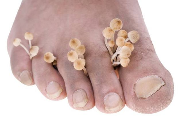 Grzybica paznokcia