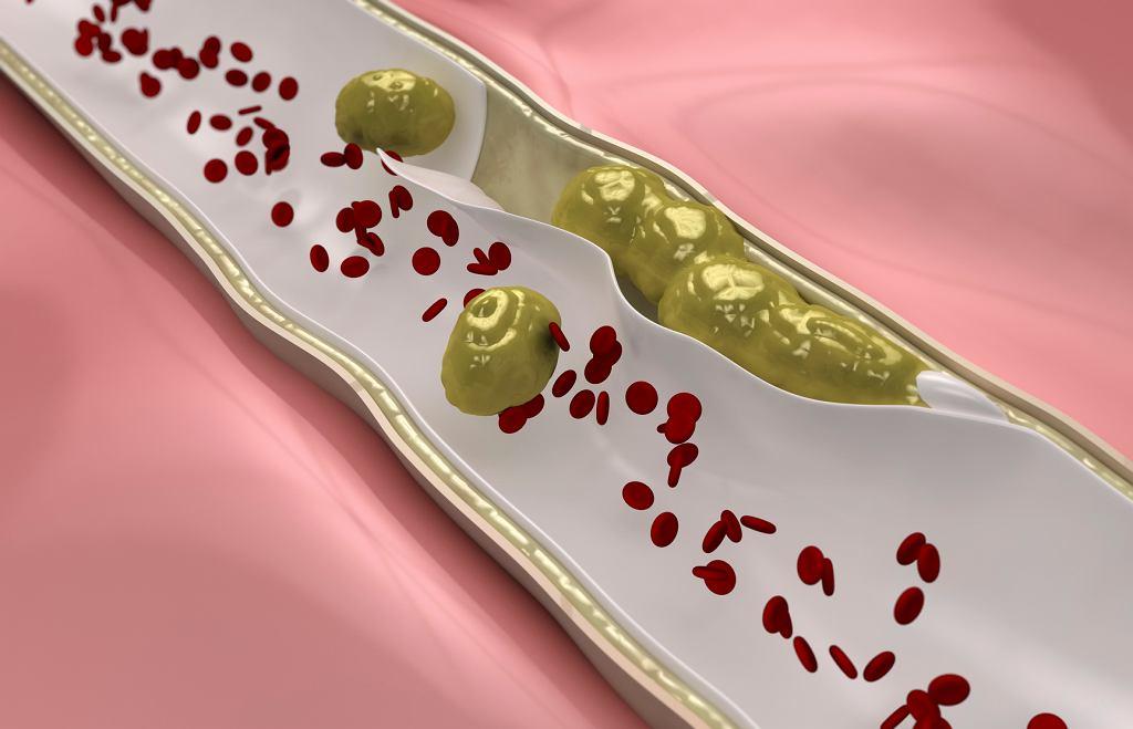 Zły cholesterol LDL (na rysunku zaznaczony na żółto) odkłada się w ścianach tętnic