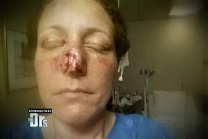 Były chłopak odgryzł jej nos! Przeszła operację plastyczną. Efekt jest oszałamiający