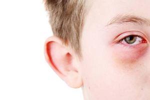 Alergiczne zapalenie spoj�wek
