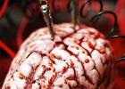 Ciekawy przypadek Pacjenta H.M. Pamięć człowieka, któremu wyssano część mózgu