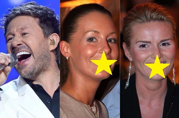 """Nie każda gwiazda rodzi się z pięknym uśmiechem, czasem musi go """"wypracować"""". O tym, że swoje zęby poprawiał Piasek, Tom Cruise czy Ronaldo wiedzą już chyba wszyscy, ale przed Wami gwiazdy, których byście nie podejrzewali lub już zapomnieliście, że kiedyś nie grzeszyły pięknym-prostym uśmiechem."""