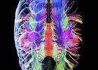 Neuroseksizm uczonych, czyli draka o p�e� m�zgu