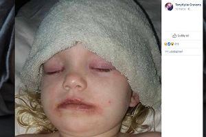 """Farbki do makijażu na Halloween mogą być niebezpieczne dla dzieci. """"Oczy były spuchnięte, ciało pokryła wysypka"""""""