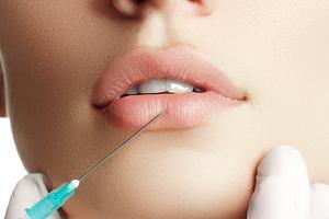 Powiększanie objętości ust - wypełniacz hialuronowy
