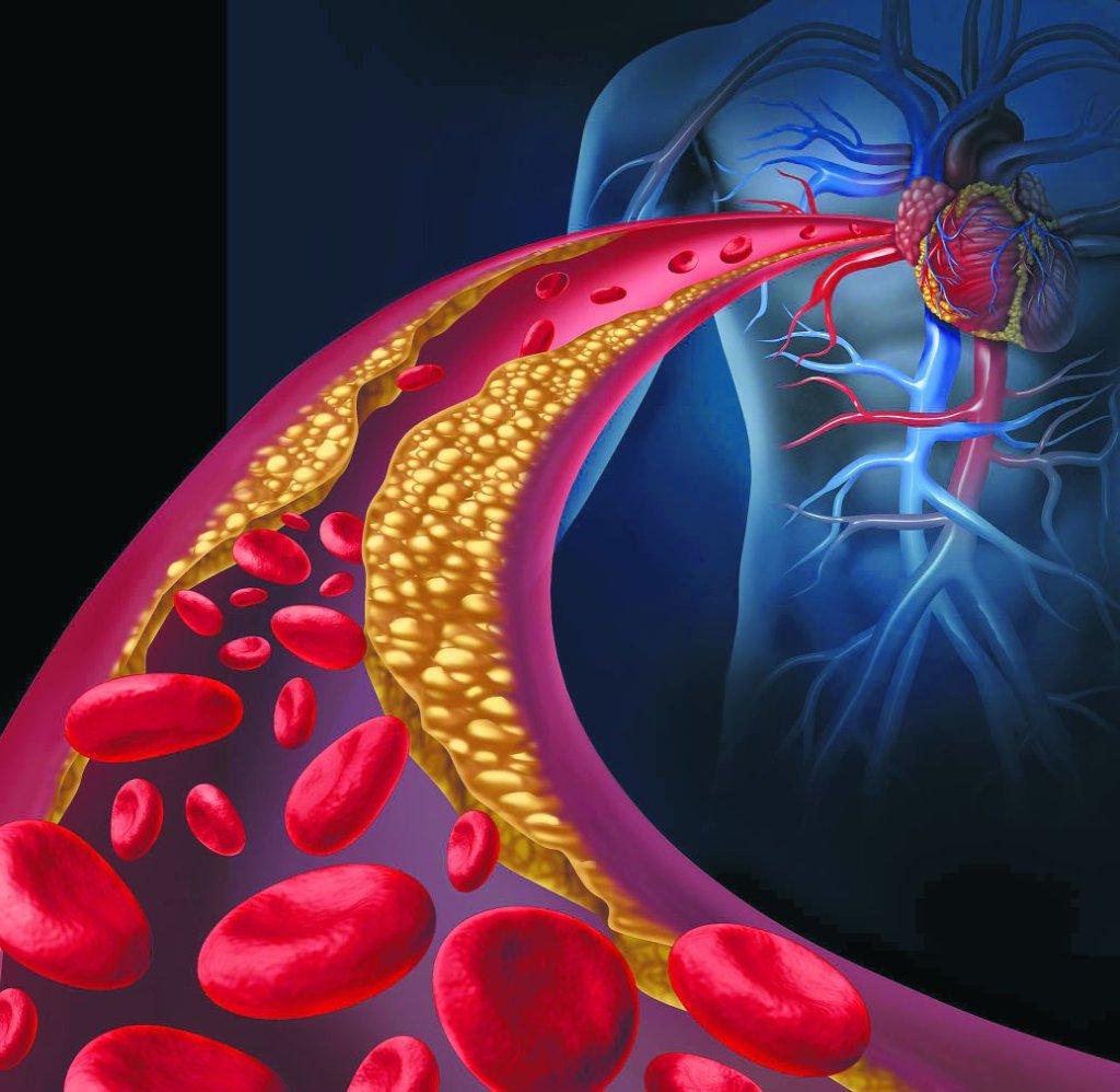 Nadmiar złego cholesterolu prowadzi do rozwoju miażdżycy, czyli do pogrubienia ścian naczyń krwionośnych i utraty ich elastyczności. Nadmierne jego ograniczanie też nie jest zdrowe.