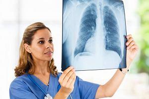 POChP - przewlekła choroba płuc