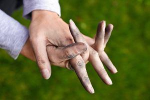 Shigella - sprawca czerwonki, który czyha na brudne ręce