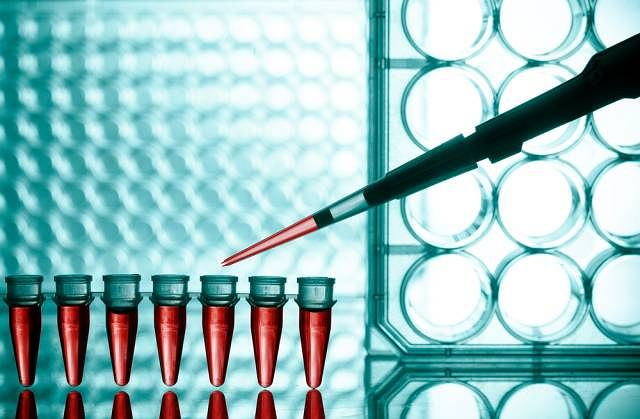 Podwyższony poziom limfocytów najczęściej pojawia się przy infekcji wirusowej lub bakteryjnej