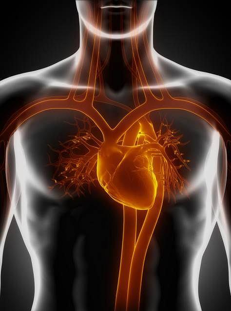 Ostre rozwarstwienie aorty najczęściej pojawia się u osób z nadcisnieniem bądź miażdżycą