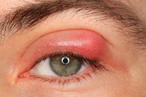 Jęczmień na oku - irytujący ropień. Objawy, przyczyny i leczenie jęczmienia