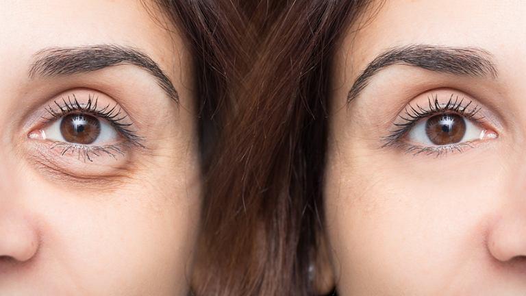 Karboksyterapia jest zabiegiem kosmetycznym, w którym wykorzystuje się dwutlenek węgla. Jest on wprowadzany pod skórę przy pomocy małej igły