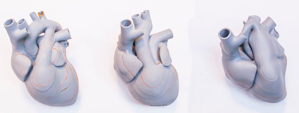 Modele 3D serca płodu na etapie 20-tygodni. Już z zewnątrz widać różnice. Od lewej-prawidłowy, środek- przełożenie wielkich pni tętniczych typu d; prawy- zesół niedorozwoju lewego serca (fot. materiały prasowe)