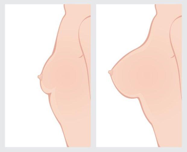 Samobadanie piersi krok po kroku (rysunki)