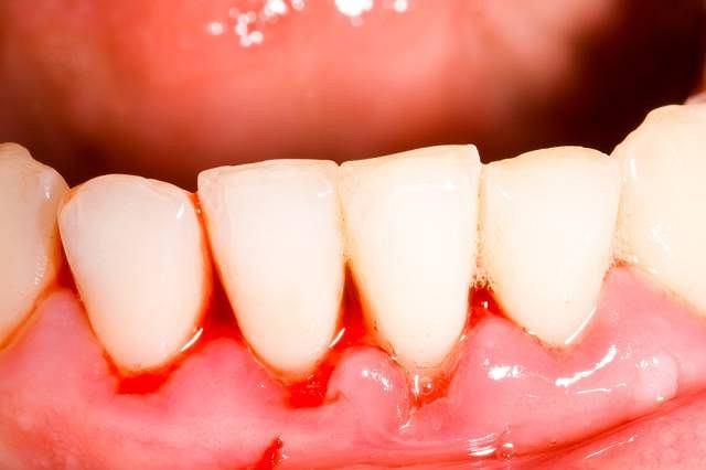 Ból i krwawienie dziąseł to zazwyczaj konsekwencja braku właściwej higieny jamy ustnej