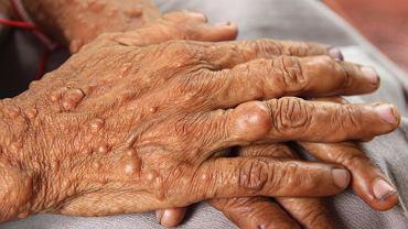 Nerwiakowłókniakowatość to wrodzone choroby skórno-nerwowe, a dziedziczy się ją w sposób autosomalny dominujący.