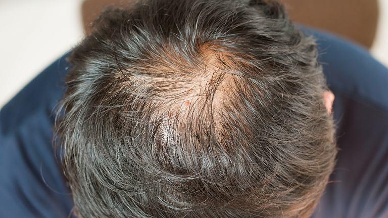 Brytyjscy naukowcy odkryli, że składnik leku na osteoporozę pomaga leczyć łysienie