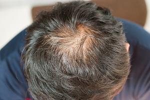 Środek na osteoporozę leczy łysienie. Niespodziewany efekt eksperymentu naukowców