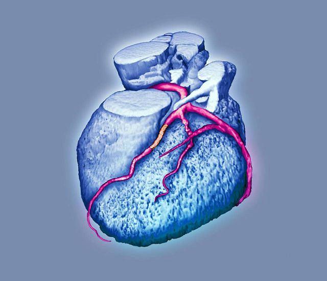 Niewydolność serca to epidemia XXI wieku