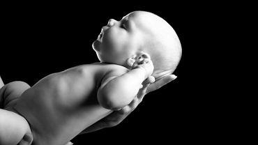 Bardzo duża głowa u nowo narodzonego dziecka może być związana z chorobą genetyczną