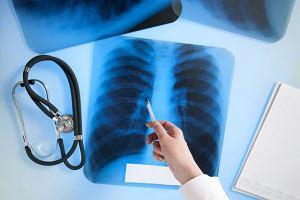 Choroby śródmiąższowe płuc