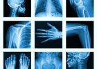 Dysplazja włóknista kości