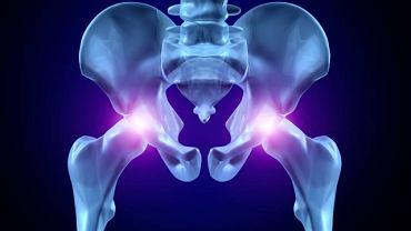 Choroba Perthesa najczęściej prowadzi do zmian w obrębie stawu biodrowego