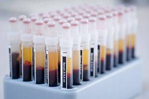 Immunoglobuliny (Przeciwciała)