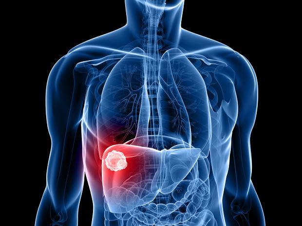 Objawy raka wątroby. Jak wygląda diagnoza i leczenie tego nowotworu?