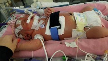 Opryszczka wargowa jest śmiertelnie niebezpieczna dla noworodków