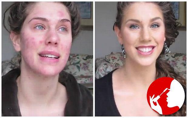 Masz trądzik? Koniec z makijażem - czy nasze mamy miały rację? [EKSPERT RADZI]