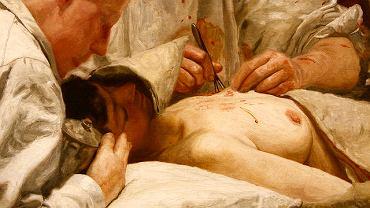 """Obraz Thomasa Eakinsa """"The Agnew Clinic"""" z 1889 roku przedstawia zabieg częściowej mastektomii."""