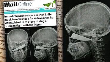 25-latek z RPA spędził cztery dni z ostrzem wbitym w głowę, zanim lekarze usunęli mu je w trakcie operacji