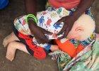 Dramat 3-letniego albinosa. Rodzina musi go chronić przed mordercami