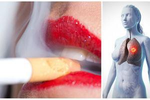 """""""Kobietom też przystoi palić"""" - emancypacja nikotynowa zbiera żniwa. Rak płuc najbardziej zabójczym nowotworem już nie tylko wśród mężczyzn"""