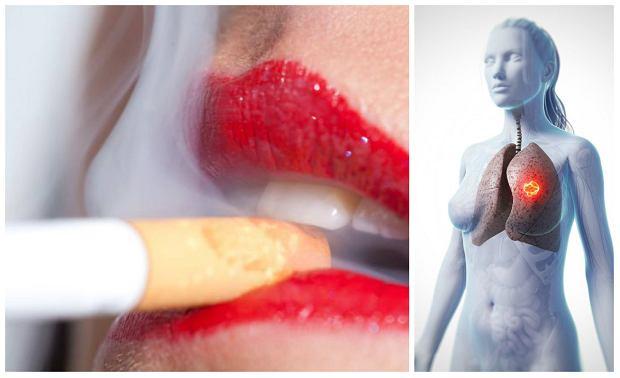 """""""Kobietom te� przystoi pali�"""" - emancypacja nikotynowa zbiera �niwa. Rak p�uc najbardziej zab�jczym nowotworem ju� nie tylko w�r�d m�czyzn"""