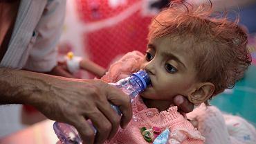 Ojciec poi wodą niedożywioną córeczkę w centrum karmienia w szpitalu w Hodeida, 27 września 2018 r.