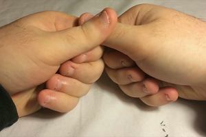 Czym grozi obgryzanie paznokci? [NaZdrowie]