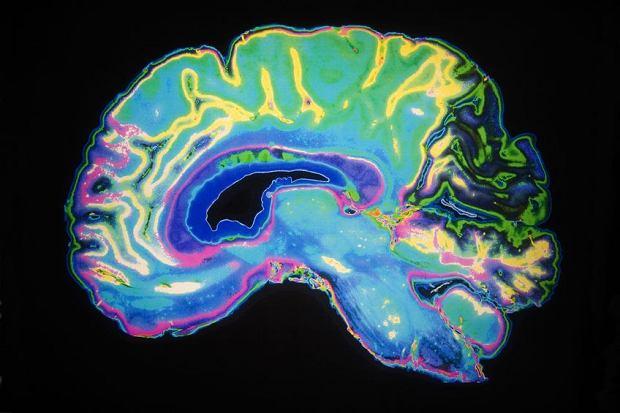Historyczna chwila: naukowcy wszczepili 20 ochotnikom protezy pamięci do mózgu. Tak chcą leczyć wiele chorób