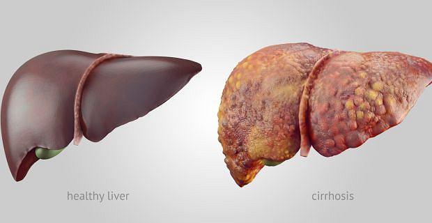 Zdrowa wątroba i wątroba zmieniona w wyniku marskości