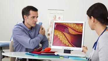 Choroba wieńcowa może doprowadzić do zawału mięśnia sercowego