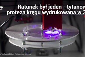 Rak zaatakował kręgosłup pacjenta. Australijscy lekarze wycieli chory fragment i zastąpili go tytanową kopią wydrukowaną w drukarce 3D