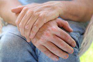 Bielactwo nabyte: przyczyny, leczenie