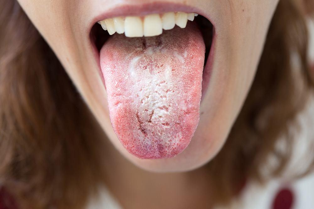 Drożdżyca nazywana jest także kandydozą, jest to jedna z infekcji grzybiczych