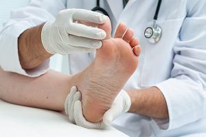 Koślawość stóp - powszechna dolegliwość, która nie zawsze jest chorobą