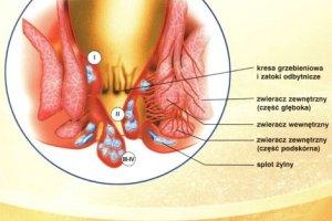 Hemoroidy - żylaki odbytu, choroba hemoroidalna. Leczenie chirurgiczne