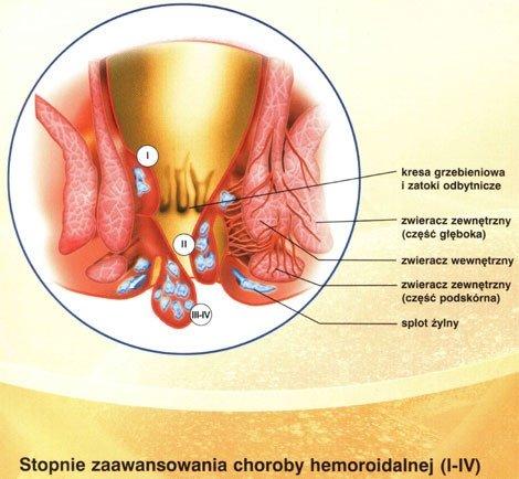 Hemoroidy - �ylaki odbytu, choroba hemoroidalna. Leczenie chirurgiczne