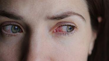 Alergiczne zapalenie spojówek najczęściej występuje u osób do 20 roku życia