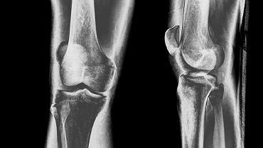 Artroza - to zwyrodnienie stawów spowodowane starzeniem się układu kostno-stawowego