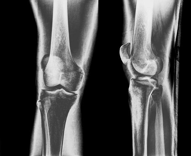 Artroza - choroba zwyrodnieniowa stawów